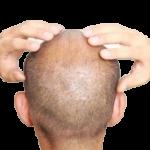 masajecapilar-removebg